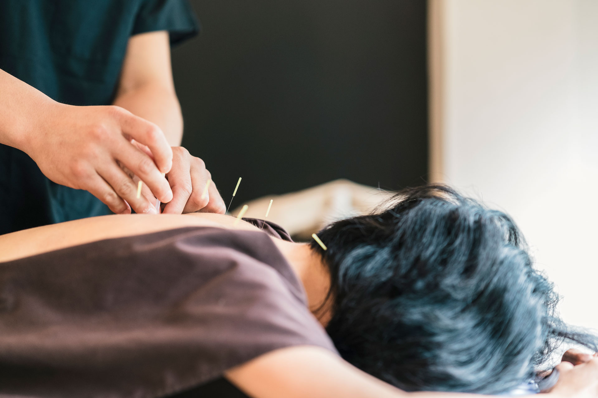 What Are The Benefits Of Acupuncture Treatments?